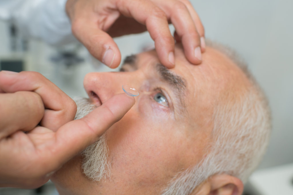 Application of amniotic membrane using a bespoke contact lens